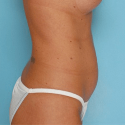 Manhattan abdominoplasty before 2